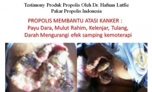 Testimoni Pemakai Melia Propolis Untuk Segala Penyakit
