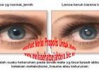 Manfaat Melia Propolis Untuk Mata